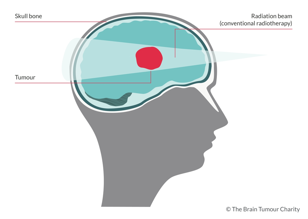 A graphic showing radiotherapy to the brain