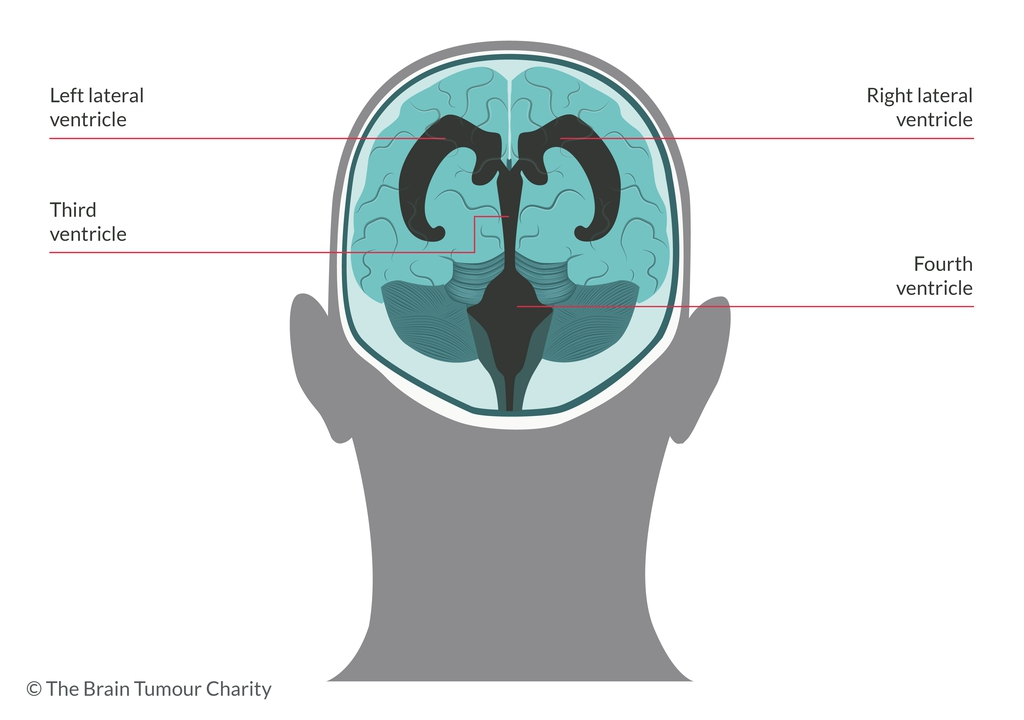 graphic showing the location of the ventricles in the brain