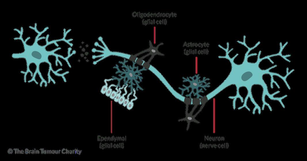 Oligodendroglioma | The Brain Tumour Charity