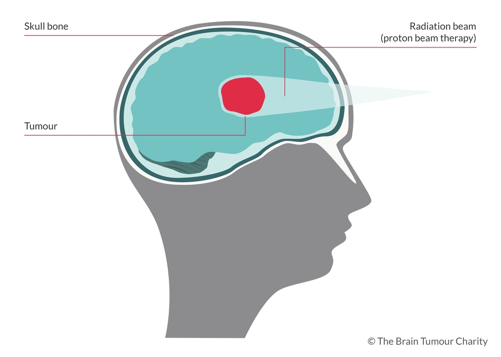 Graphic of proton beam therapy and the brain
